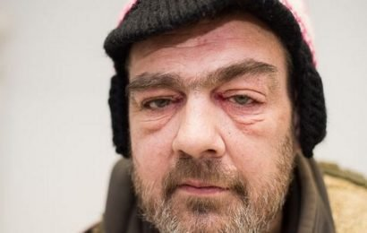 Man who had kebab thrown in face by thug who ran off breaks silence