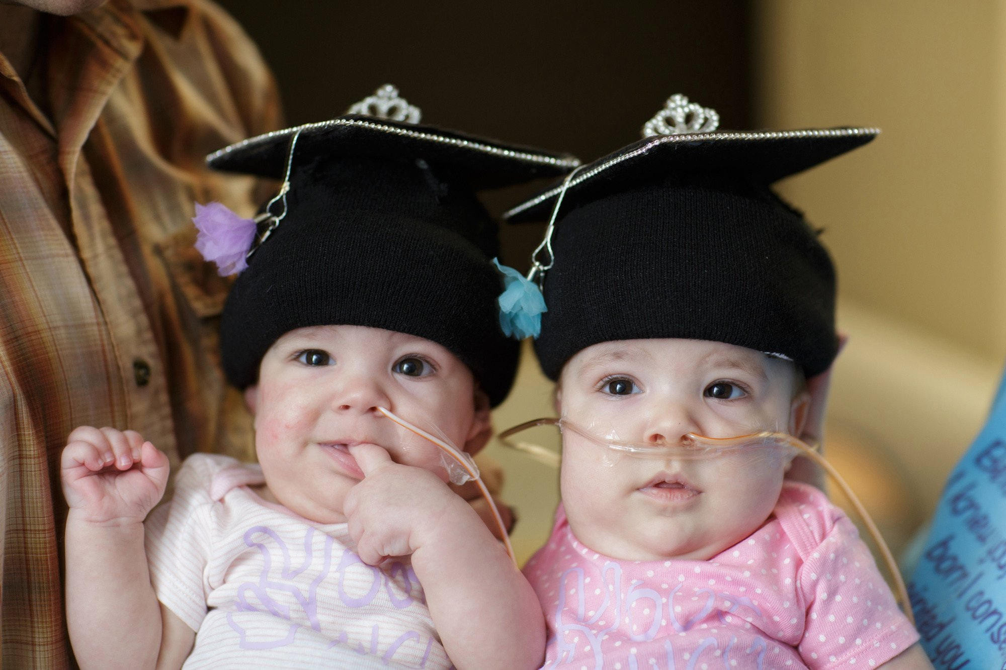 These once-conjoined twins are headed home for Christmas