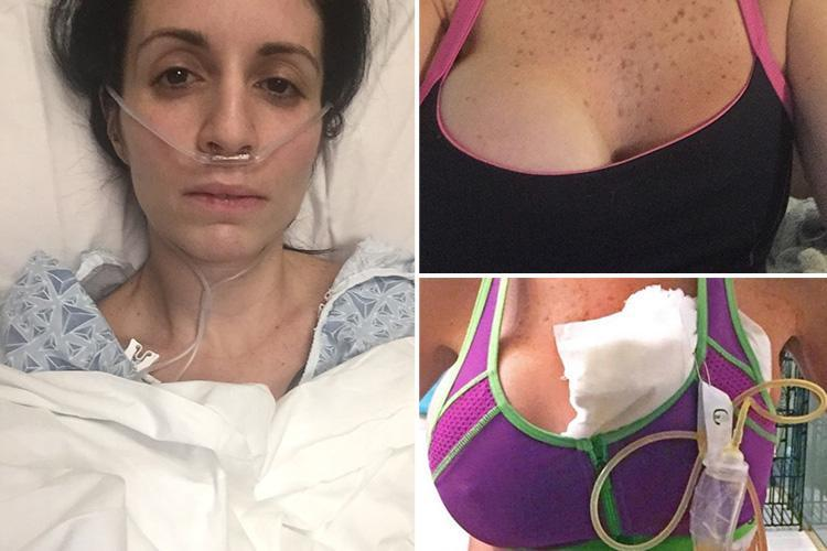 Waitress left with just ONE boob after sepsis from botched op nearly kills her