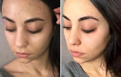 Paula's Choice £26 exfoliant hailed as a 'wonder' product for clearing up acne… and fans claim it works 'within 30 minutes'