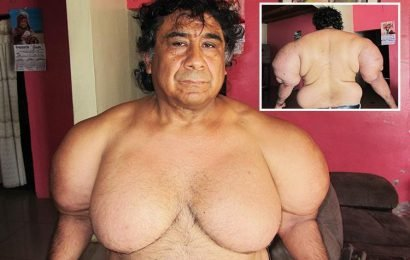 Male diver left with BREASTS and arms swollen like Popeye after air supply is severed by passing ship