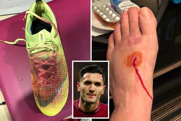 West Ham star Lucas Perez shows off gruesome injury and bloodied boot after win over Crystal Palace