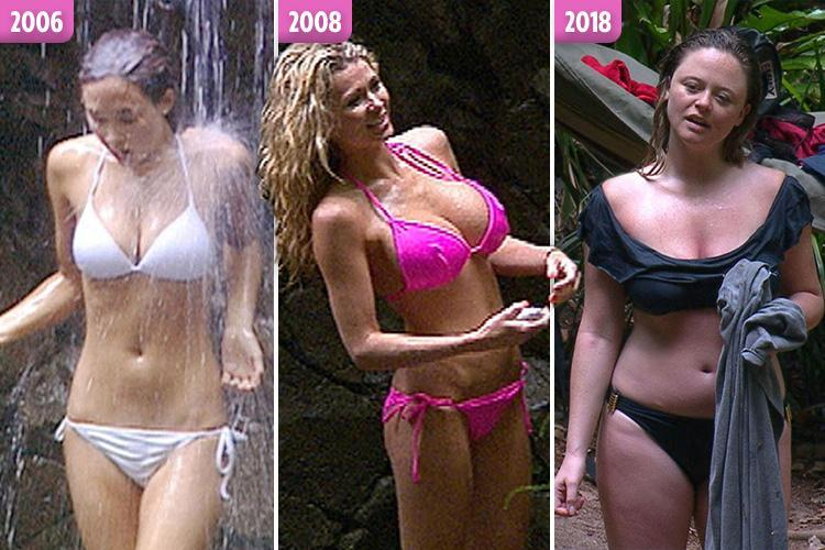 Hurrah! Forget fake boobs and thigh gaps: finally there are REAL bodies in I'm a Celeb