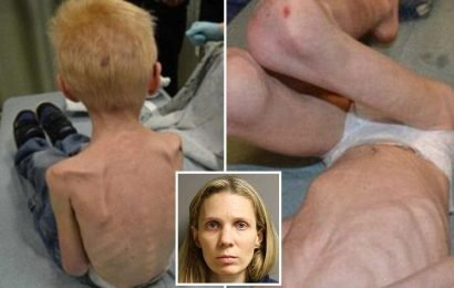 Starved boy, 5, left 'looking like Holocaust victim' after being TASERED and locked in 'Harry Potter' room under the stairs