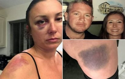 Wife slams justice system after husband who beat her avoid jails