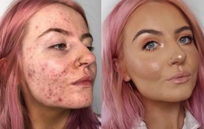 Cystic acne sufferer shares incredible snaps using foundation