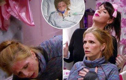 Emmerdale fans disgusted as Bernice suffers gruesome allergic reaction to dodgy at-home Botox