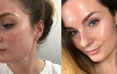 I Thought the Broken Capillaries on My Face Were Acne Scars — Here's How I Got Rid of Them