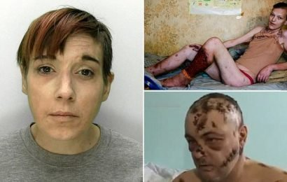 'I'm being eaten away from the inside': Briton poisoned by Krokodil