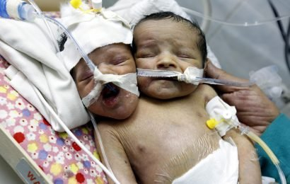 Parents refuse to make agonising decision over which of their conjoined twins will survive