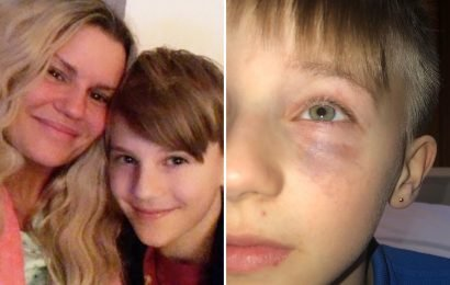 Kerry Katona threatens to 'rip heads off' as she reveals heartache after son, 10, is left with black eye