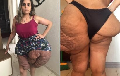 Brazilian woman, 28, crippled by huge 1kg cysts that have DOUBLED the size of her legs