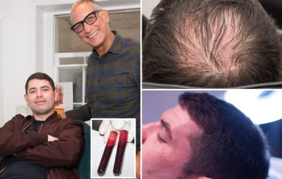 Dad's life-changing £300 treatment for baldness using blood from his arm