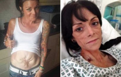 Mum's intestines 'exploded' through C-section scar – now she needs FIVE organ transplants