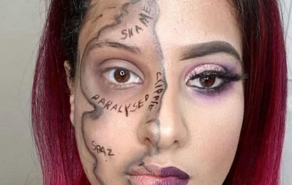 "Disabled woman writes on her FACE all the ""hurtful"" words strangers call her"