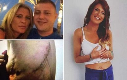 My toyboy beat me so violently I nearly died – doctors had to rebuild my ribs