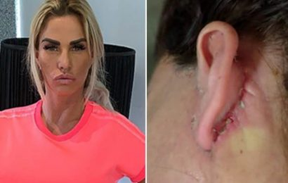 Katie Price 'fears ears will fall off' as infected facelift wound opens and oozes pus