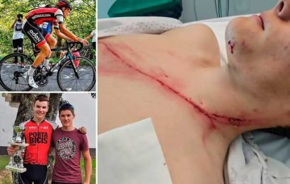 Cycling starlet shows off gruesome foot-long gash after colliding with crash barrier during Euskadi Amateur Cycling Championship