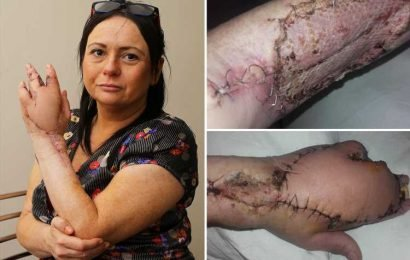 Mum's warning after cat scratch left her fighting for life with flesh-eating bug MRSA