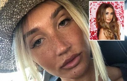 Megan McKenna looks dramatically different in make-up free selfie as she reveals new blonde hair and freckles – The Sun