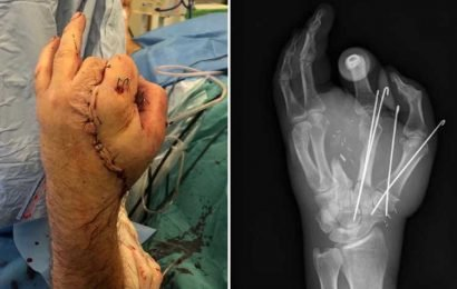 Surgeons save man's hand by sewing it to his GROIN – after it was sliced off by chop saw – The Sun