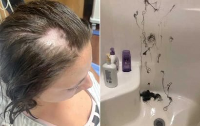 Woman loses hair in clumps after Nair allegedly mixed into her conditioner