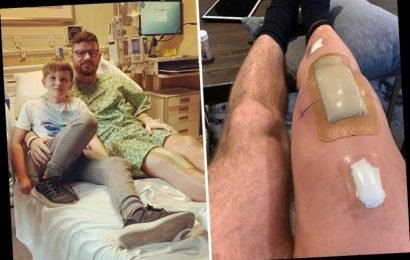 UFC legend Michael Bisping shows off hugely swollen leg after undergoing successful knee replacement – The Sun
