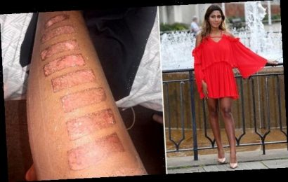 Graduate is scarred for life by laser hair removal treatment on leg