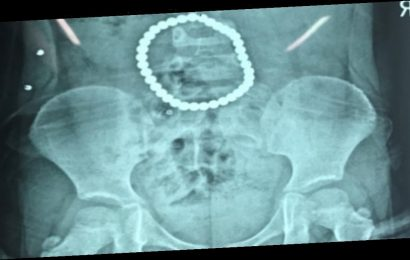 Multiple holes ripped in toddler's stomach after she swallows 37 magnetic balls
