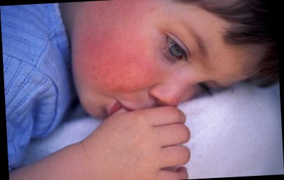 What is scarlet fever, what are the symptoms, is the rash contagious and can adults get it as well as kids?