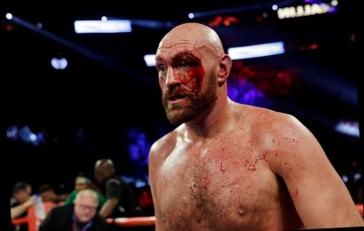 What is a technical stoppage in boxing and how can a cut differ the outcome? – The Sun