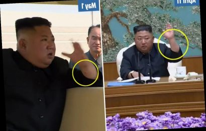 Kim Jong-un reappears with 'needle' mark on wrist suggests he's had heart surgery, experts claim – The Sun