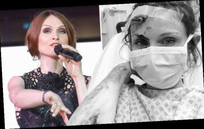 Sophie Ellis-Bextor hospitalised after 'gory' bike accident leaves her injured