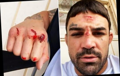 UFC star Mike Perry shows off gruesome mystery cuts on head and hands just week before Vegas fight return – The Sun
