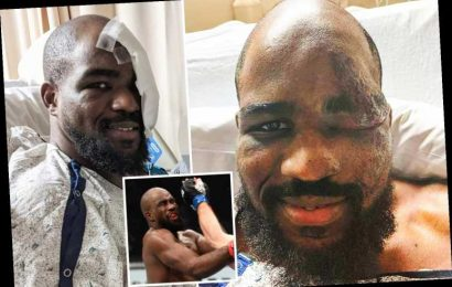 UFC fighter Corey Anderson shows off gruesome facial injuries after collapsing on walk when his heart STOPPED