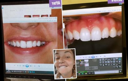 Jacqueline Jossa shows off dramatic smile makeover just days after Dan Osbourne got his teeth done in Turkey