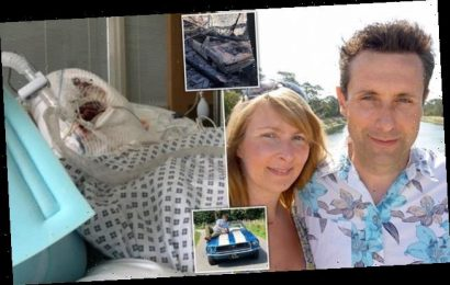 Mechanic left with horrific burns after two hour wait for ambulance