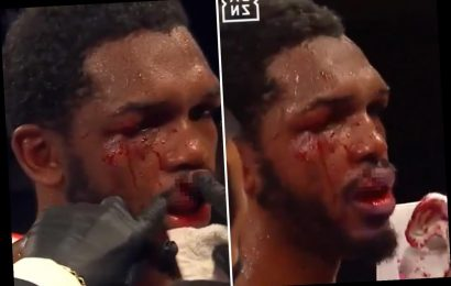 Tuerano Johnson's lip split in HALF by brutal uppercut from Jaime Munguia who wins by technical knock-out