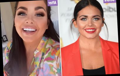 Scarlett Moffatt shows off her new teeth as she hits back at school bullies admitting 'I finally feel like I can smile'