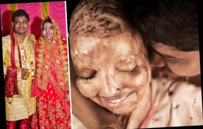 Acid attack survivor doused in petrol & set alight for 'rejecting marriage proposal' weds man she met on hospital ward