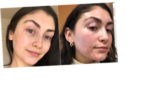 How I Got Rid of My Red Acne Marks With One Laser Treatment