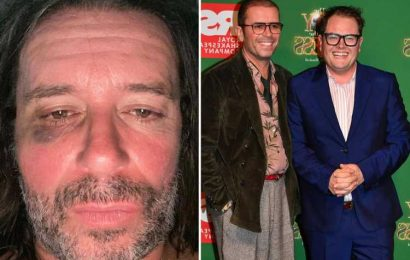 Alan Carr's husband Paul Drayton apologises to him and says 'he has not and would never hit me' after black eye picture